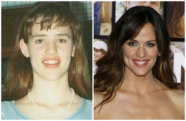 škaredé celebrity