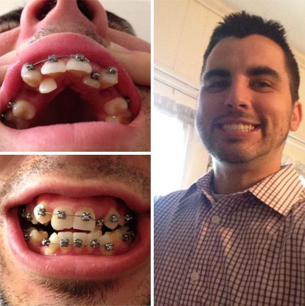 strojcek na zuby (1)