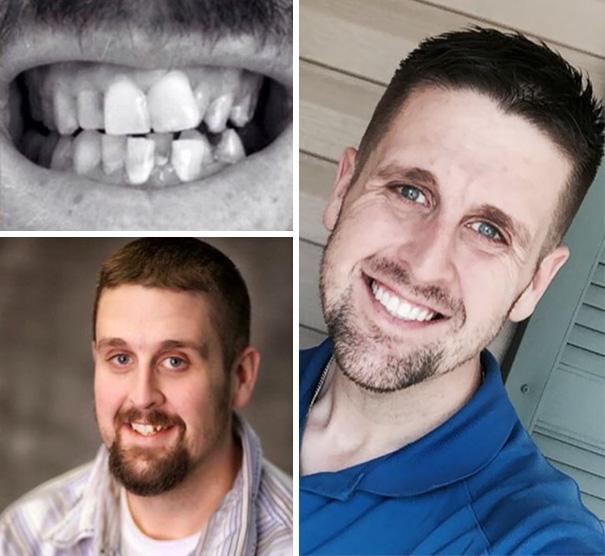 strojček na zuby (10)