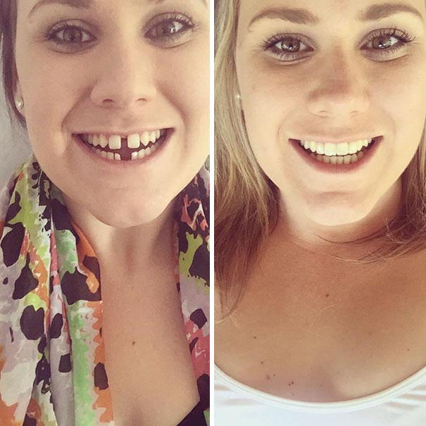 strojcek na zuby (3)