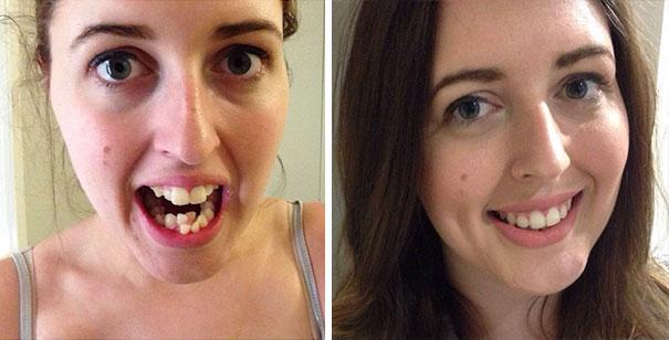 strojcek na zuby (7)