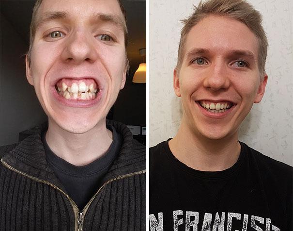 strojcek na zuby (9)